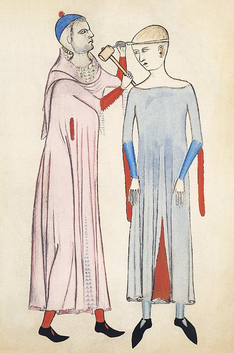 Trepanation, 14th Century Artwork Print by Sheila Terry