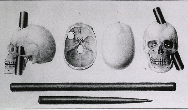 Various Views Of The Famous Wound Print by Everett