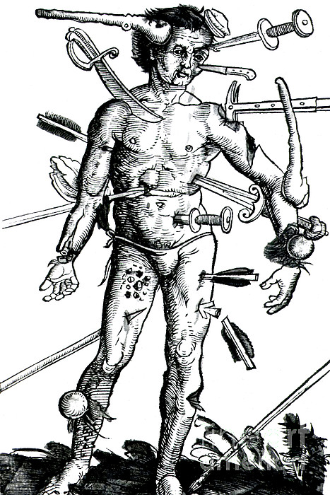 Wound Man 1517 Print by Science Source