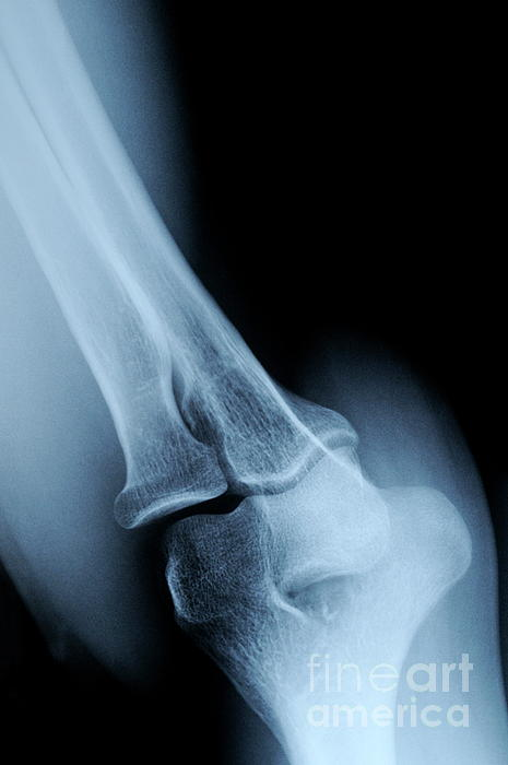 X-ray Image Of Mature's Man Elbow Print by Sami Sarkis