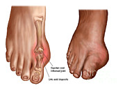 Swollen Posters - Anatomy Of A Swollen Foot Poster by Stocktrek Images