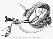 Uterus Framed Prints - CHILDBIRTH, c1880 Framed Print by Granger