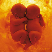 Color Photography Posters - Untitled Poster by Anne Geddes