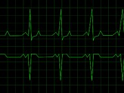 Analyze Digital Art - Normal Heart Rhythm by Henrik Lehnerer