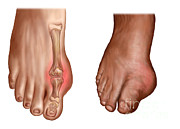Comparison Art - Anatomy Of A Swollen Foot by Stocktrek Images