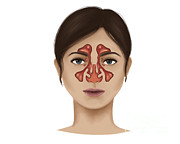 Human Head Art - Anatomy Of Nasal Sinuses by Stocktrek Images
