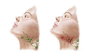 Human Head Art - Anatomy Of Swollen Lymph Nodes by Stocktrek Images
