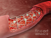 Blood Cells Digital Art Posters - Artery Cross-section With Blood Flow Poster by Stocktrek Images