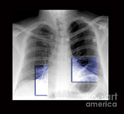 Living Art Enterprises - Atelectasis Of Lung