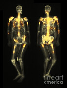 Bone Scan Showing Multiple Metastases Print by Scott Camazine
