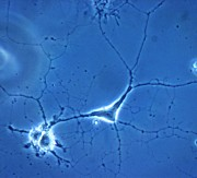 Cytology Posters - Brain cells - Oligodendrocytes LM Poster by Spl