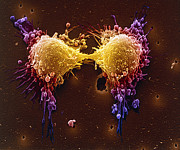 Scanning Electron Micrograph Art - Cancer Cell Division by SPL and Photo Researchers