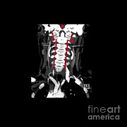 Living Art Enterprises, LLC - Color Enhanced Cta Of Vertebral Arteries