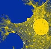 Cytoskeleton Tem Human Skin Cell Print by Spl