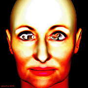 Blind Eyes Prints - Diagnosed With Extensive Hair Growth Within Her Anterior Chambers  Print by Josef Putsche