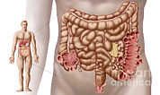 Diverticulitis In The Descending Colon Print by Stocktrek Images
