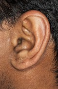 Science Photo Library - Human ear