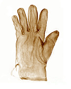 Bert Myers - Leather Glove X-ray