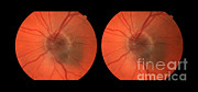 Melanoma Of The Optic Nerve Stereo Image Print by Paul Whitten