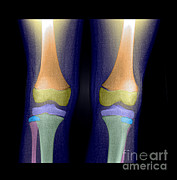 Living Art Enterprises - Normal Pediatric Legsknees, X-ray