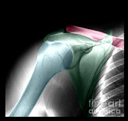 Living Art Enterprises - Normal Shoulder, X-ray