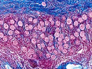 Ovarian Follicles, Light Micrograph Print by Science Photo Library