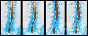 Scott Camazine - Spine, Ct Scan