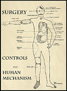 Mechanism Digital Art Metal Prints - SURGERY CONTROLS the HUMAN MECHANISM   1906 Metal Print by Daniel Hagerman