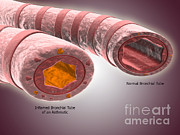 Comparison Art - Trachea Cross-section Showing Normal by Stocktrek Images