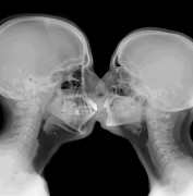 Kissing Framed Prints - X-ray of a couple kissing Framed Print by Guy Viner