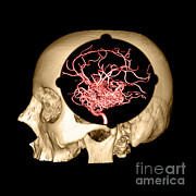 3d Imaging Framed Prints - 3d Image Of Skull And Brain Avm Framed Print by Medical Body Scans