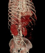 3-d Photo Posters - Aortic Aneurysm Ct Scan Poster by Zephyr