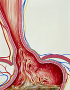 Hernia Prints - Art Of Gastro-oesophageal Reflux In Hiatus Hernia Print by John Bavosi
