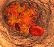 Physiology Photos - Blood Clot by Roger Harris