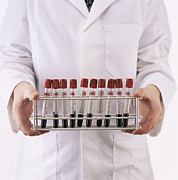 Rack Photos - Blood Samples by Kevin Curtis
