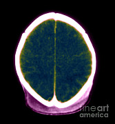 Brain Prints - Brain Damage From Lack Of Oxygen Print by Medical Body Scans