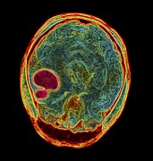 Brain Prints - Brain Tumour, Mri Scan Print by Pasieka