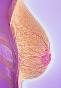 Conditions Photo Posters - Breast Abscess, X-ray Poster by Cnri