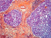 Art Product Prints - Breast Cancer, Light Micrograph Print by Steve Gschmeissner