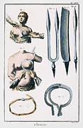 Denis Framed Prints - Breast Surgery Framed Print by Granger