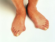 Inflammation Photos - Bunions by Victor De Schwanberg