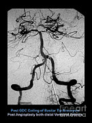 Cerebrum Posters - Cerebral Angiogram Poster by Medical Body Scans