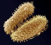 Ciliate Protozoa, Sem Print by Steve Gschmeissner