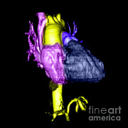 Color Enhanced Art - Color Enhanced 3d Cta Of Heart by Medical Body Scans