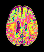 Brain Scan Prints - Coloured Mri Scan Of Organophosphate Brain Damage Print by Mehau Kulyk