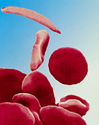 Blood Cell Posters - Coloured Sem Of Blood In Sickle Cell Anaemia Poster by Dr Gopal Murti