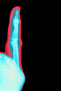 Arthritis Prints - Coloured X-ray Of Finger With Rheumatoid Arthritis Print by Mehau Kulyk