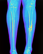 Tibia Posters - Coloured X-ray Of Fractured Shin Bone (tibia) Poster by Mehau Kulyk