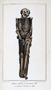Decomposition Prints - Decomposition On Exhumed Bodies, 1831 Print by Science Source