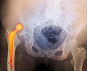 Treated Photos - dislocated Hip Prosthesis, X-ray by Du Cane Medical Imaging Ltd